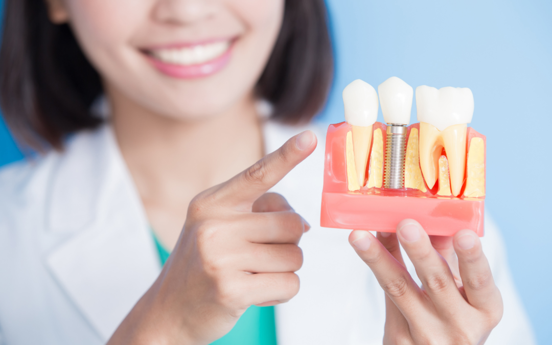 What Can Dental Implants Do For Your Smile?